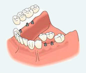 dental-implants4a