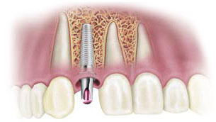 dental-implant2a