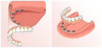 dental-implants5