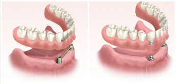 dental-implants6